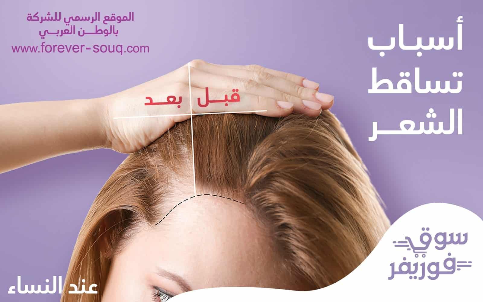اسباب تساقط -تعرف على أسباب تساقط الشعر الشديد الشعر عند النساء