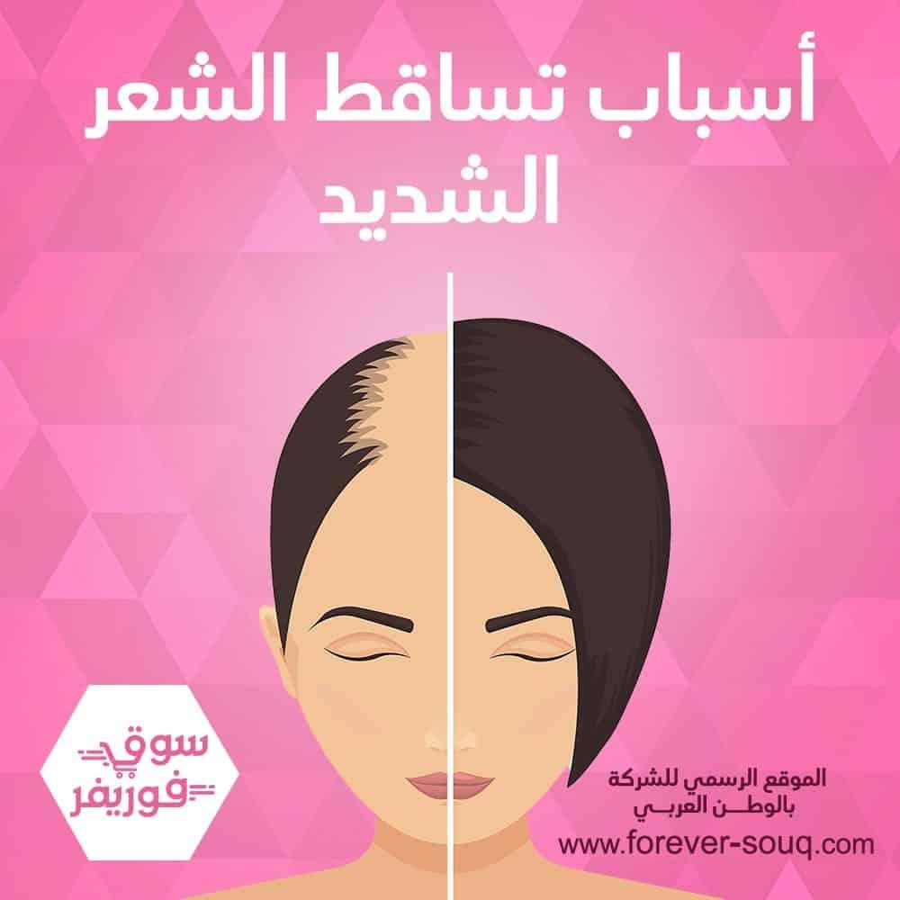تعرف على أسباب تساقط الشعر الشديد اسباب تساقط الشعر
