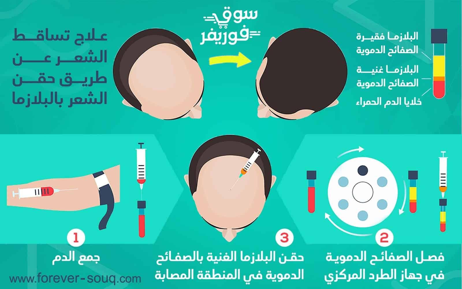تعرف على أسباب تساقط الشعر الشديد علاج تساقط الشعر بالبلازما
