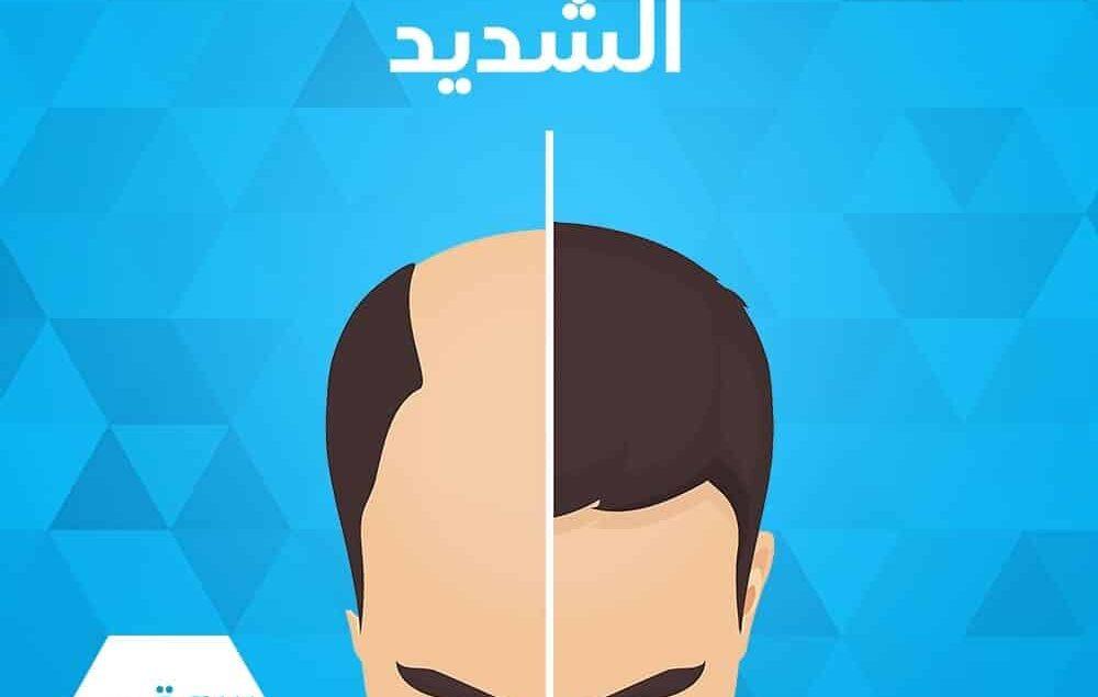 تعرف على أسباب تساقط الشعر الشديد