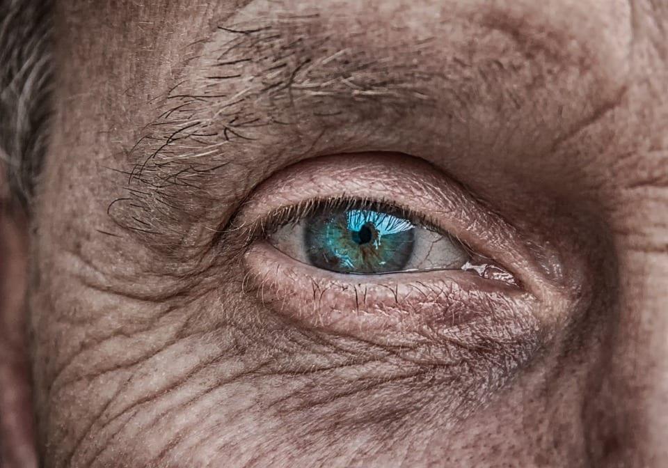 facial wrinkles1